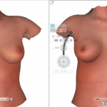 3D планирование результата операции